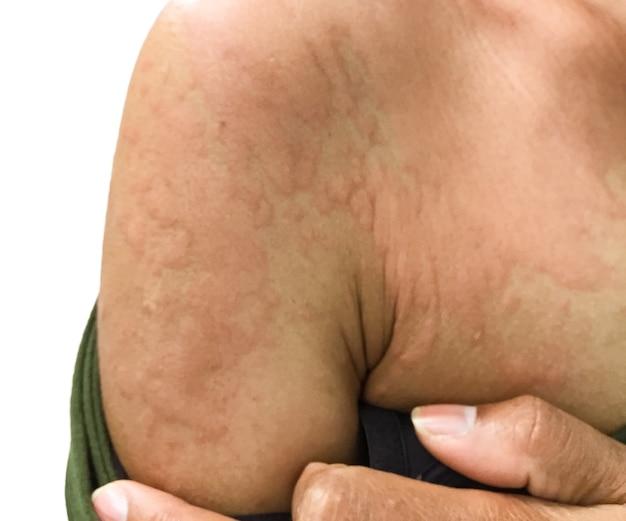 Immagine del primo piano del corpo di una femmina una puntura di insetto con gravi eruzioni cutanee allergiche