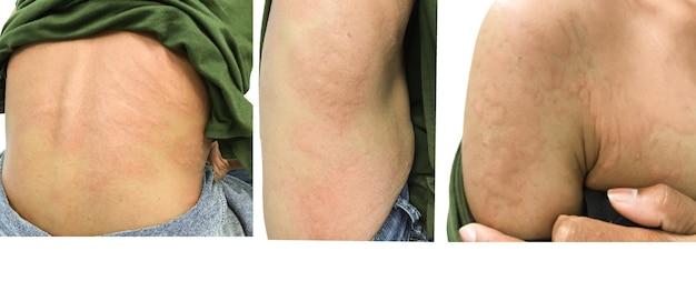 Immagine del primo piano del corpo un'orticaria femminile una puntura di insetto con gravi eruzioni cutanee allergiche