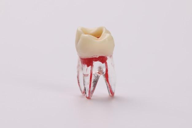 Primo piano del manichino di plastica del dente con i vasi sanguigni sul trattamento bianco della pulpite del fondo