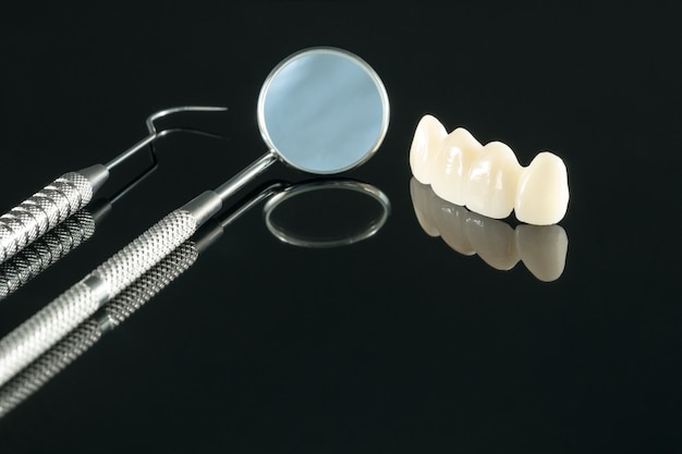 Primo piano / odontoiatria protesica o protesi / corona dentale e attrezzature per implantologia a ponte e restauro modello express fix.