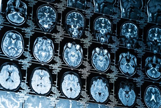 Serie del primo piano di immagini di risonanza magnetica del cervello, concept