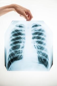 Colpo del primo piano dell'uomo che tiene la pellicola a raggi x dei polmoni sopra fondo bianco
