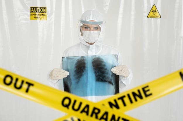 Colpo del primo piano di giovane medico che tiene i raggi x dei polmoni sopra il petto. linea gialla keep out quarantine. concetto di coronavirus