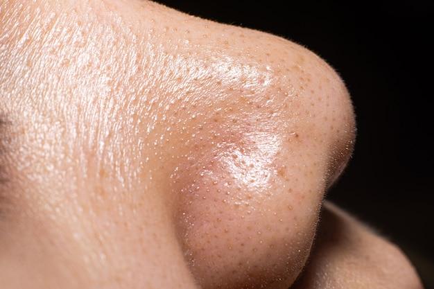 La pelle del primo piano del naso delle donne mostra i piccoli punti neri dei brufoli