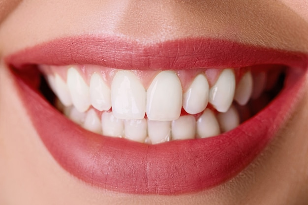Primo piano del sorriso con i denti sani bianchi. sbiancamento dei denti. cure odontoiatriche. cura delle labbra