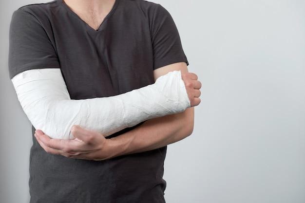 Vista ingrandita del braccio dell'uomo con calco in gesso su una parete bianca