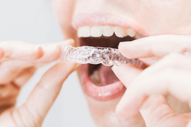 Primo piano della bocca della donna che mette su un fermo trasparente con illuminazione naturale morbida