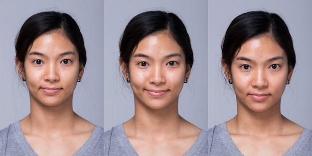 Pacchetto collage gruppo asian woman prima di applicare il trucco stile di capelli. nessun ritocco, viso fresco con acne, labbra, occhi, guance, bella pelle liscia. studio illuminazione sfondo grigio, trattamento di terapia estetica