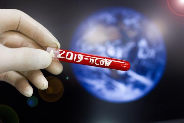Concetto di epidemia sull'intero pianeta del coronavirus il virus si diffonde in tutto il mondo