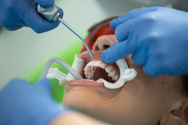 Concetto di igiene orale professionale e pulizia dei denti. concentrati su una siringa per acqua e un'eiezione di salvia sulle mani