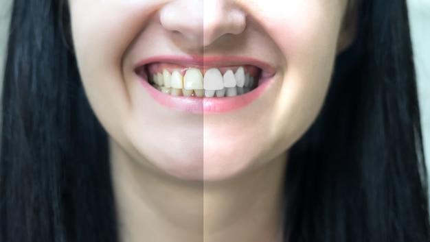 Concetto di sbiancamento dei denti prima e dopo