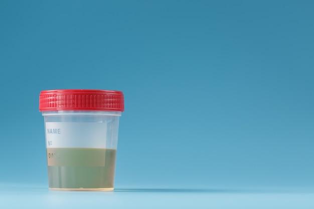 Contenitore con esami medici delle urine