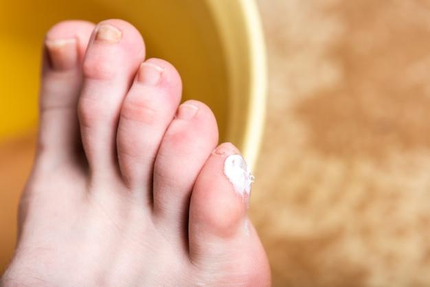 Mais o clavus sul piede femminile. applicare un unguento sulle vesciche.