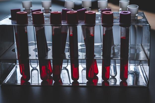 Esame del sangue con coronavirus covid-19 in provetta, laboratorio scientifico per lo sviluppo di vaccini e farmaci antivirali e test sui virus umani