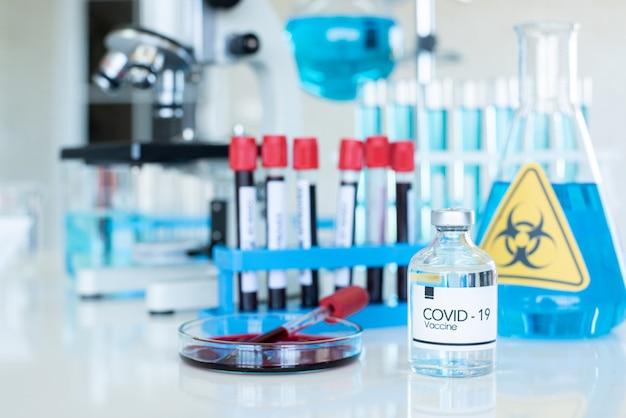 Fiale di vaccino contro il coronavirus con gruppo di apparecchiature chimiche in laboratorio.