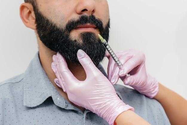 Procedura cosmetica per l'aumento delle labbra per un uomo barbuto