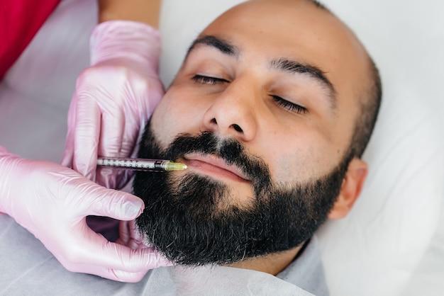 Procedura cosmetica per l'aumento delle labbra e la rimozione delle rughe per un uomo barbuto
