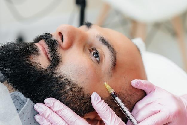 Procedura cosmetica per l'aumento delle labbra e la rimozione delle rughe per un uomo barbuto.
