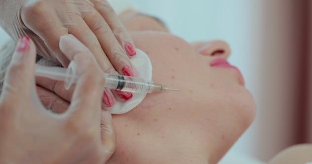 Il medico cosmetologo sta effettuando la biorivitalizzazione di iniezioni multiple con acido ialuronico nella pelle del viso della donna sulla guancia, primo piano. estetista in mesoterapia e procedura di lifting facciale in clinica di bellezza.