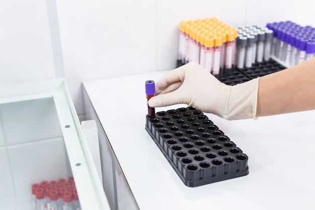 Concetto di covid-19, coronavirus, pandemia e virus: mano che tiene il sangue nelle provette in formato