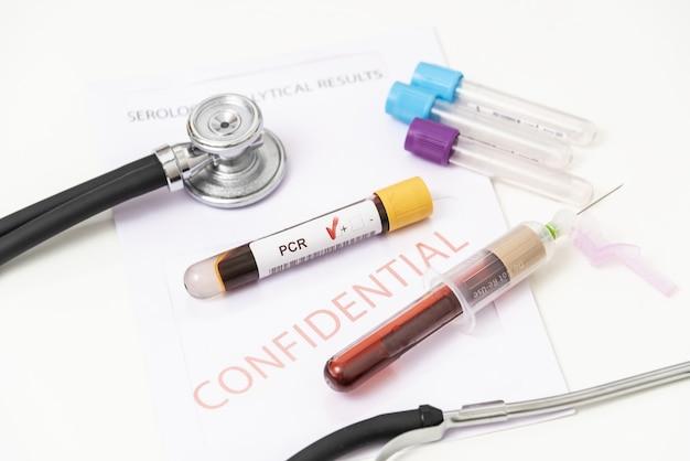 Covid-19, concetto di viaggio e test, tubo per test pcr coronavirus e passaporto turistico sulla mappa europea. diagnostica del coronavirus a causa di restrizioni e lockdown. il turismo mondiale colpito dal virus corona.