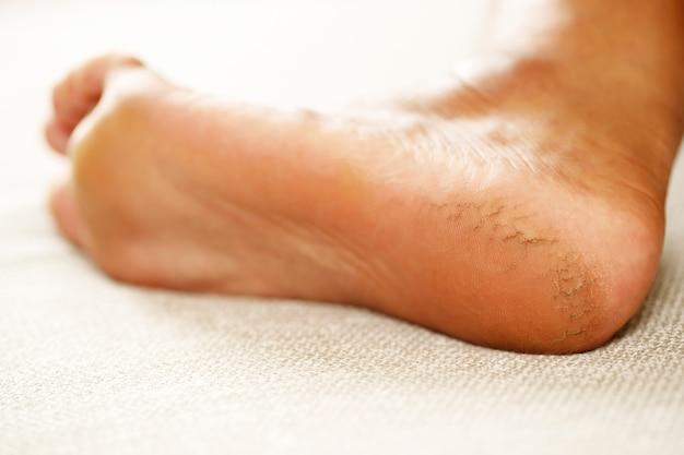 Trattamento del tallone screpolato la crema per i piedi deve essere applicata regolarmente. strofinare e massaggiare i talloni per far assorbire bene la crema. aiuta ad aggiungere idratazione alla pelle dei piedi