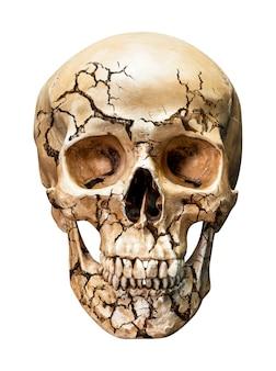 Cranio umano incrinato isolato su sfondo bianco