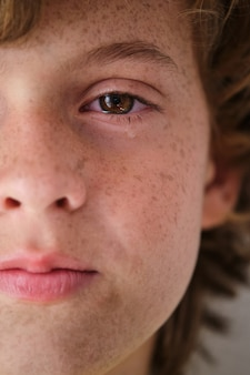 Ritaglia il ragazzo che piange con le lentiggini sulla pelle del viso