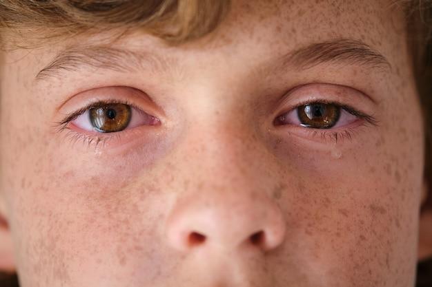 Ritaglia il bambino che piange con le lentiggini sulla pelle del viso