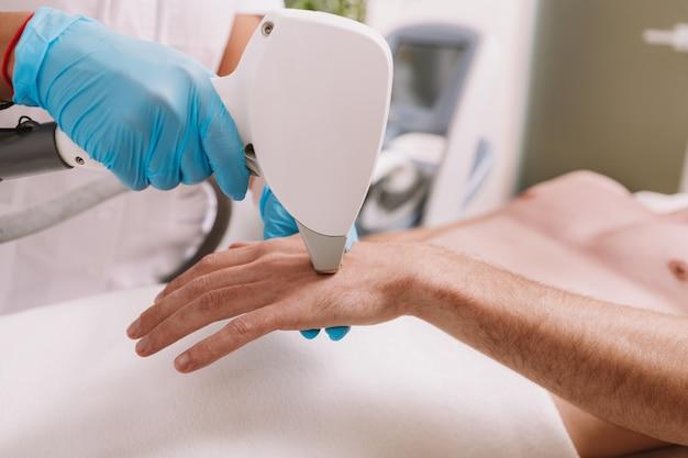 Colpo ritagliato di un cosmetologo che rimuove i capelli sulla mano di un cliente maschio, usando il dispositivo di depilazione laser