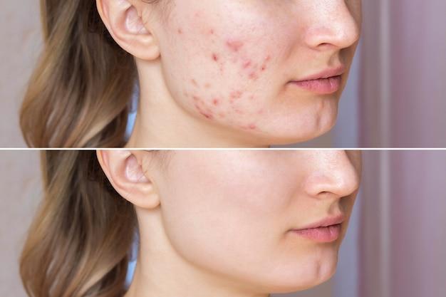 Immagine ritagliata del viso di una giovane donna prima e dopo il trattamento dell'acne su face.z
