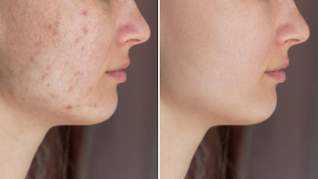 Scatto ritagliato del viso di una giovane donna prima e dopo il trattamento dell'acne sul viso eruzione cutanea di brufoli sulle guance