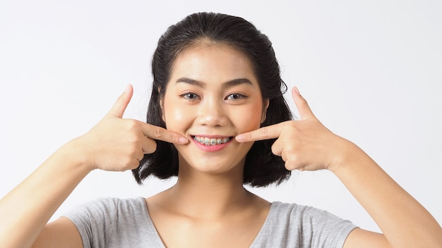 Ragazza teenager del tutore dentale che sorride alla ricerca su una macchina fotografica. denti bianchi con parentesi graffe blu. cure odontoiatriche. sorriso di donna asiatica con accessori ortodontici. odontoiatria estetica, trattamento di ortodonzia. girato in studio.