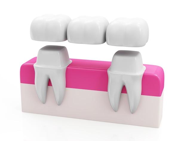 Concetto di ponte dentale corona dentale su un dente