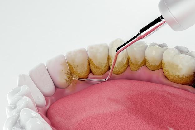 Pulizia dentale rimuovendo placca e sporco sui denti; 3d; illustrazione 3d