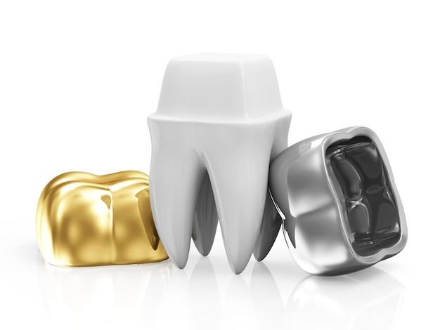 Corone dentali con un dente isolato