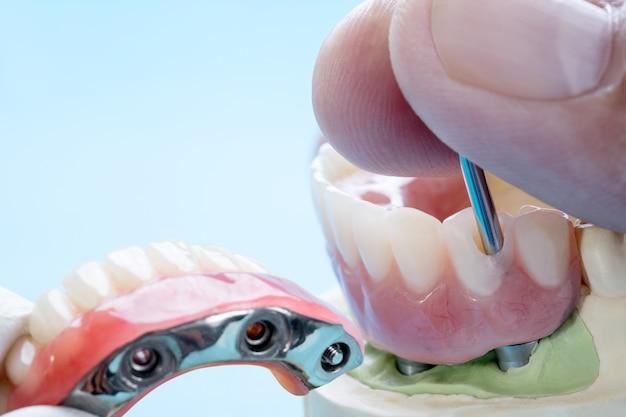 Il lavoro sugli impianti dentali è completato e pronto per l'uso/moncone provvisorio per impianti dentali