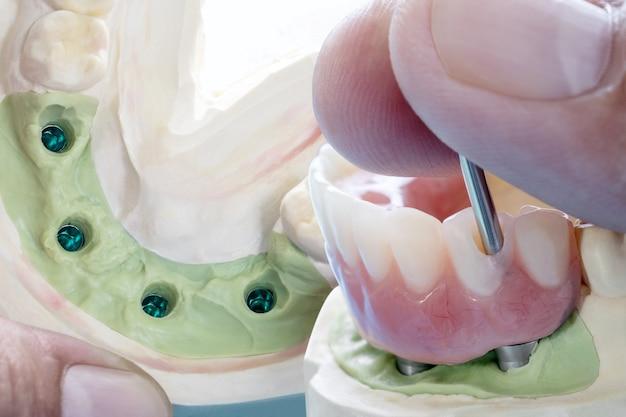 Il lavoro sugli impianti dentali è completato e pronto per l'uso / moncone provvisorio per impianto dentale