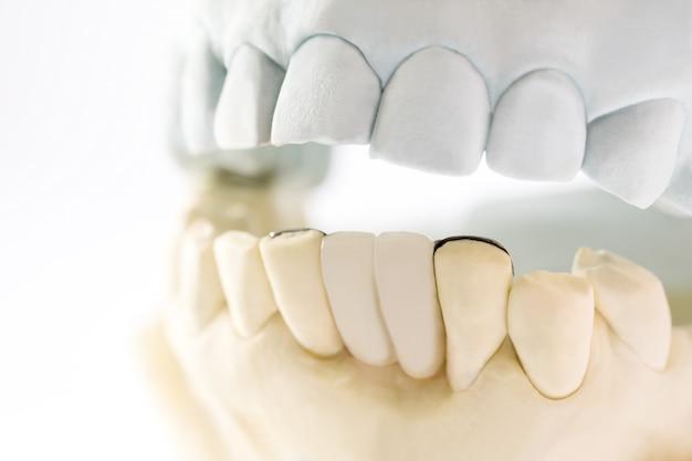 Ponte dentale di maryland
