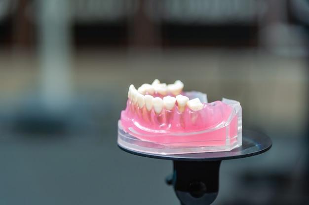 Modello dentale. modello j aw con problemi. trattamento delle malattie dentali.