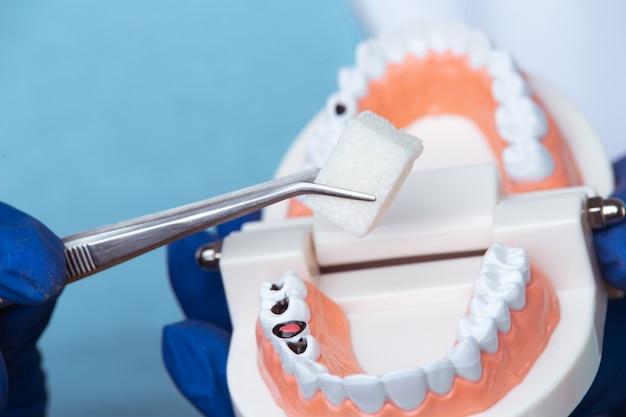 Appuntamento dal dentista, strumenti di odontoiatria e concetto di controllo igienista dentale con dentiere modello denti e strumenti di stomatologia su grigio scuro. controlli regolari sono essenziali per la salute orale