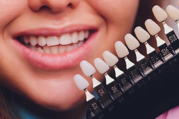 Il dentista confronta il colore dei denti del paziente con i campioni per il trattamento sbiancante.