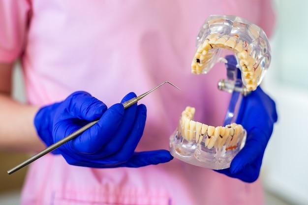 La donna del medico del dentista in una maschera e guanti tiene una mascella artificiale. controllo e cure odontoiatriche in una clinica odontoiatrica. igiene orale e trattamento.