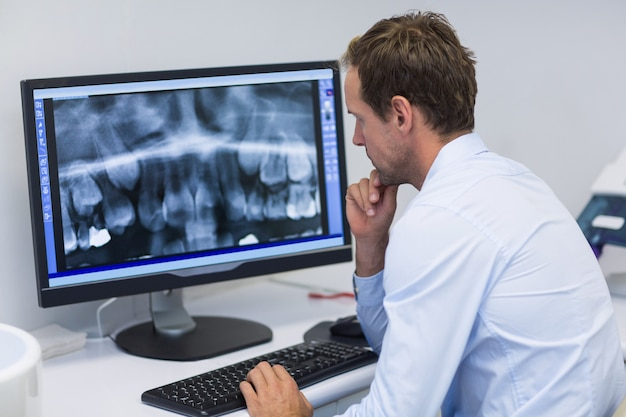Dentista che esamina una radiografia sul computer in clinica odontoiatrica