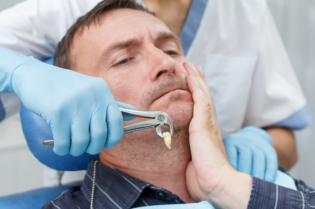 Il dentista ha estratto un dente malato dal paziente in studio dentistico. concentrati su pinze o pinze dentali in acciaio inossidabile e estrai il dente inferiore in esso. odontoiatria