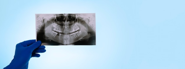 Dentista che tiene un'istantanea del dente del paziente su sfondo blu, il medico analizza l'immagine della mascella, layout panoramico