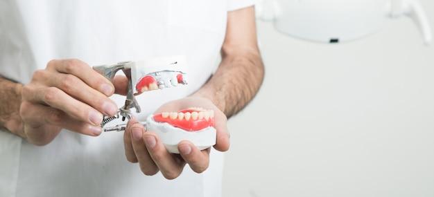 Il dentista tiene una mascella finta in mano