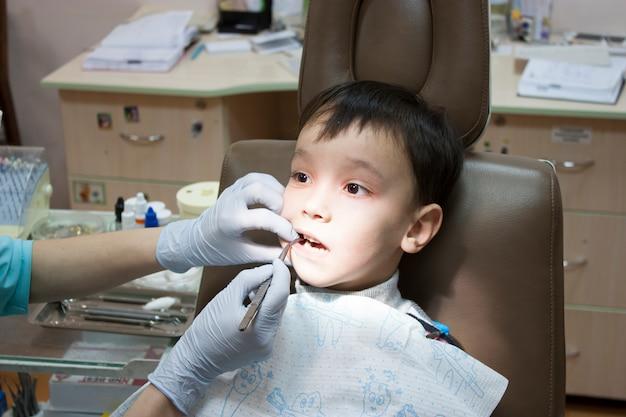 Il dentista sta curando i denti di un ragazzo