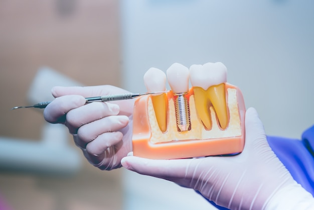 Dentista con denti finti impianto dentale. odontoiatria e concetto di assistenza sanitaria presso la clinica odontoiatrica.