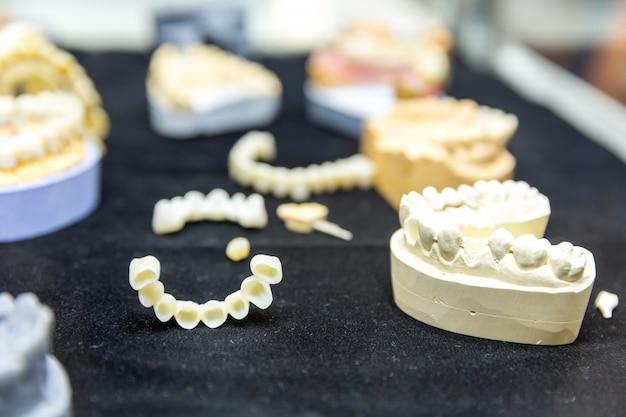 Trattamento della protesi dentaria, primo piano degli impianti dentali